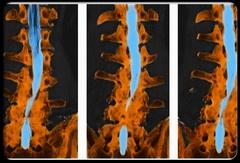 penyakit penyempitan tulang belakang